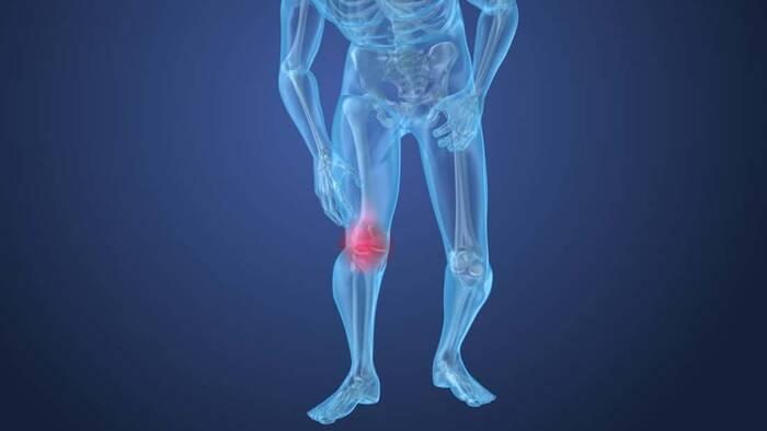 Evalúan la erosión ósea y los entesofitos en psoriasis