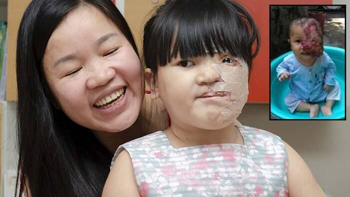 Operan el tumor vascular gigante de una niña vietnamita