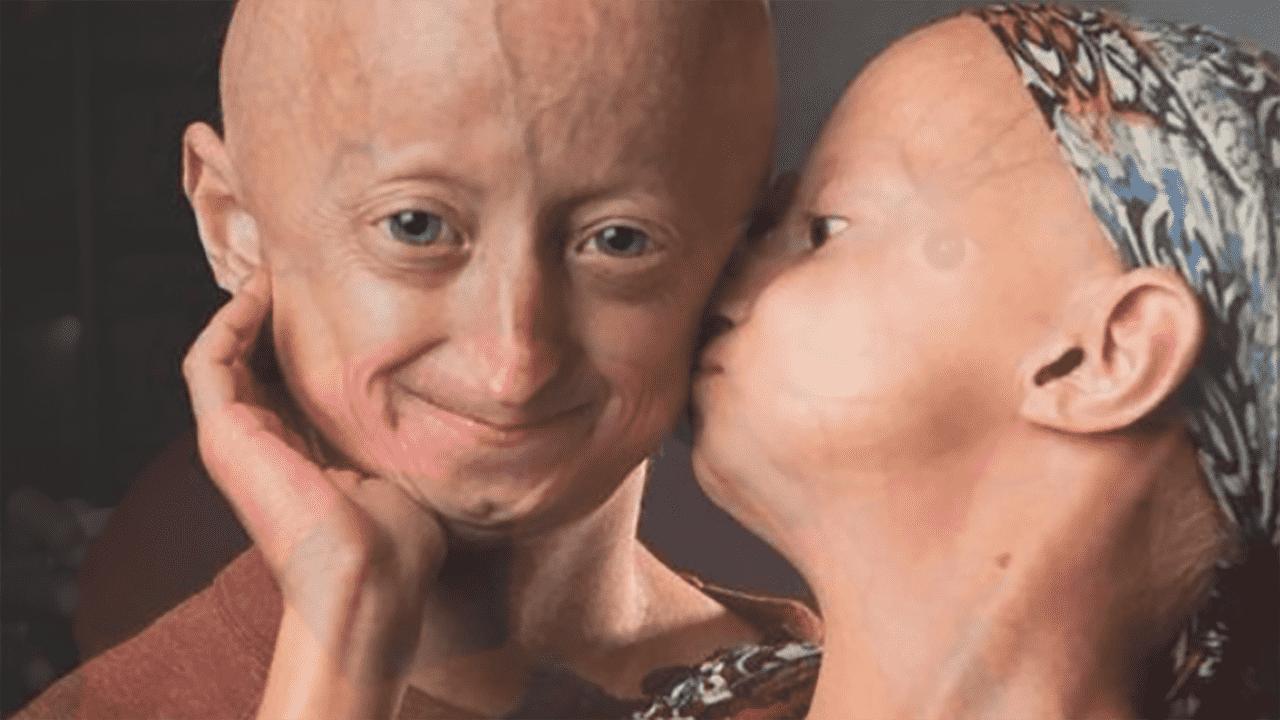 Strangest Diseases - Progenia