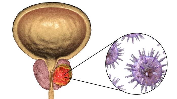 biopsia en la prostata