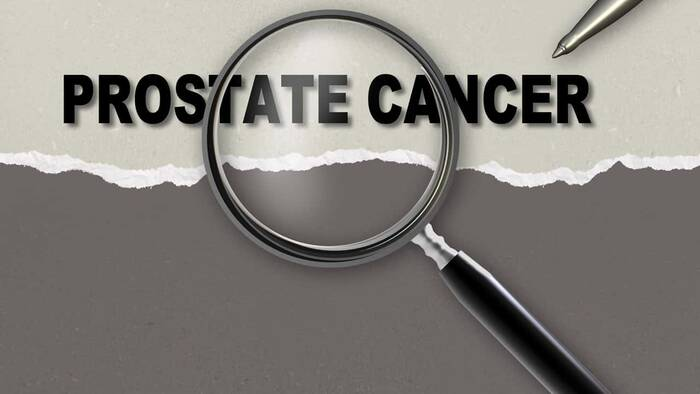 pronóstico para el cáncer de próstata del gen brca