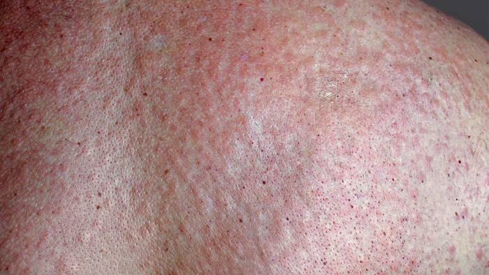 enfermedades de la piel sarna fotos