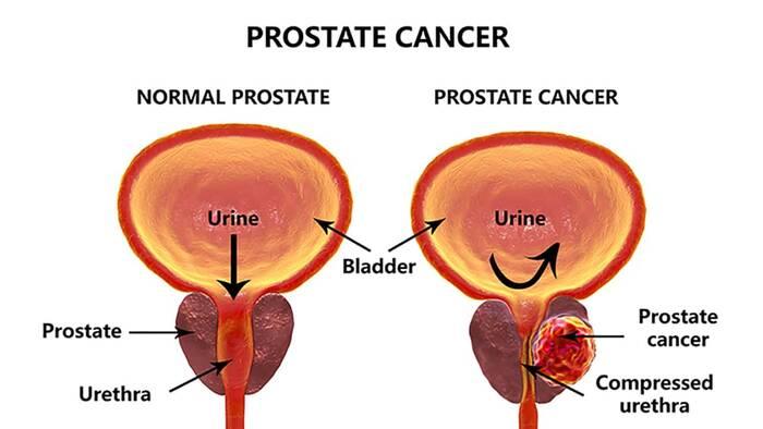 braquiterapia en cancer de prostata