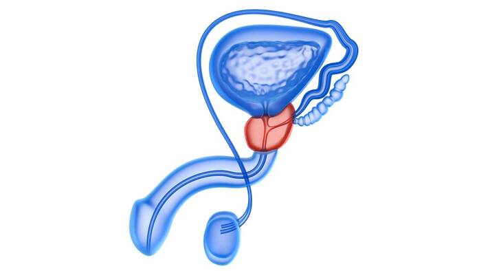 técnica de cáncer de próstata hifu