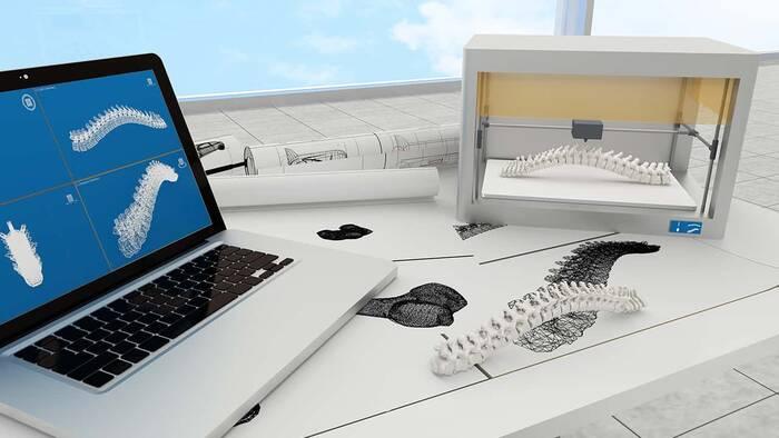 La impresión 3D llega al Hospital Universitario de Cáceres