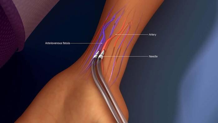 La fístula arteriovenosa mejora modificando el óxido nítrico