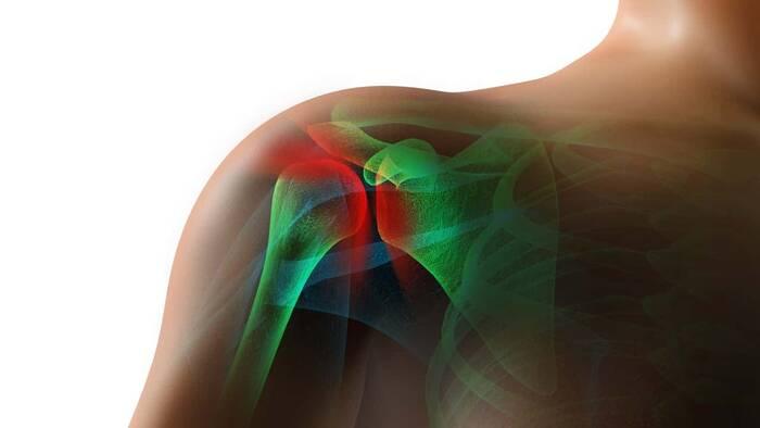 La artoplastia de hombro tiene más riesgo en pacientes obesos