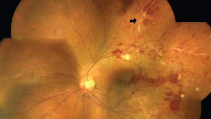 Terapia inmunosupresora, recomendada contra la vasculitis retiniana