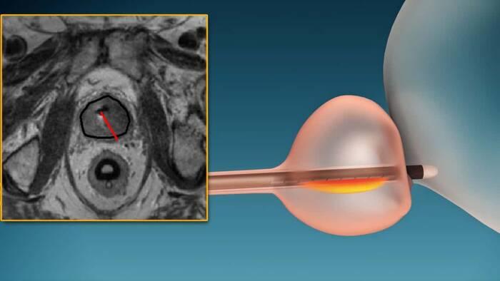 ¿Puede el cáncer de próstata ser causado por un virus?