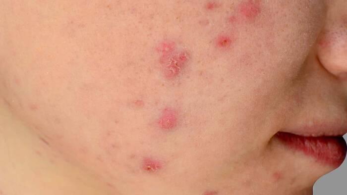 Gel de adapaleno y peróxido de benzoílo para tratar el acné