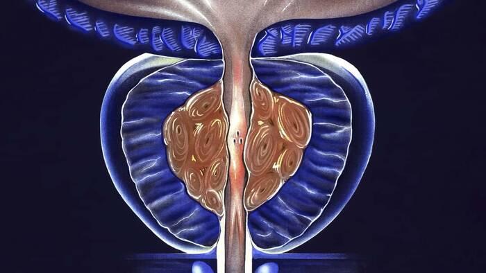 lebel de próstata para 60 años