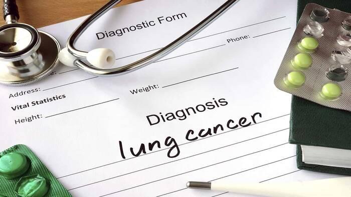 Lurbinectedina para el tratamiento de cáncer de pulmón microcítico