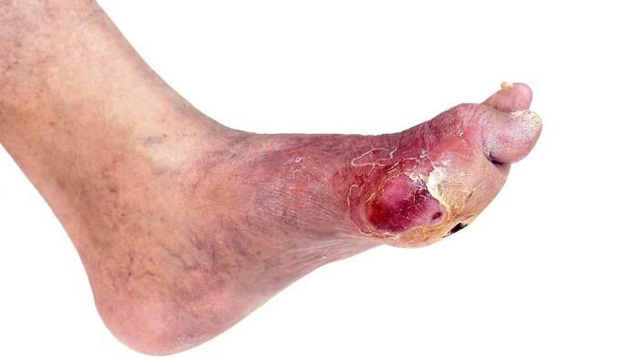 Nanopartículas de plata para curar las úlceras del pie diabético