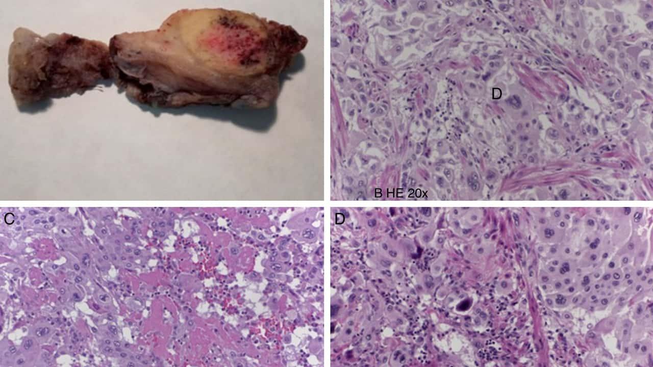 Tumor trofoblástico del lecho placentario, curable en el 90% de los casos