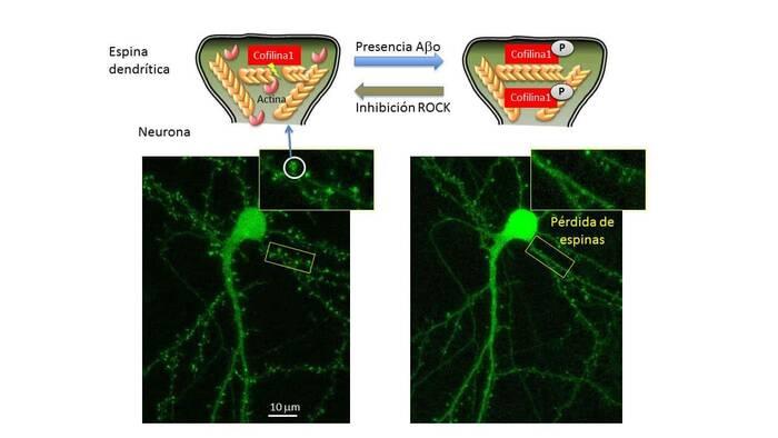 El citoesqueleto de las neuronas, implicado en el alzhéimer