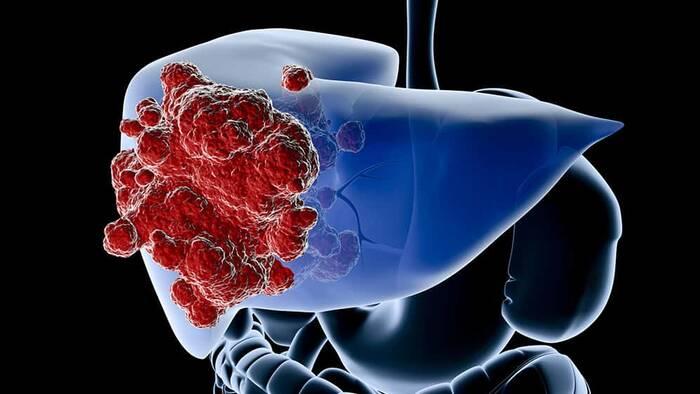 Cáncer de hígado en mujeres: la adiponectina las protege – MedsBla