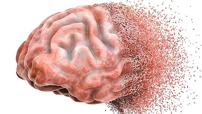 El daño cerebral por consumir alcohol no cesa al dejar de beber – MedsBla