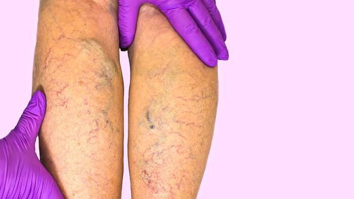 Tratamiento de las varices: estos son sus 3 pilares – MedsBla