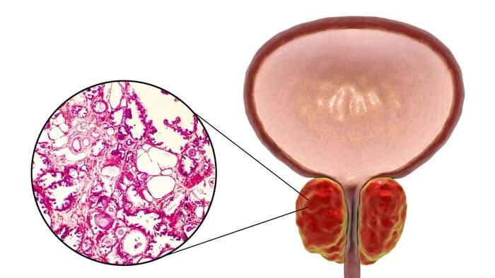 la prostatitis benigna puede causar antojos de menú