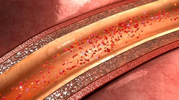 imagen de arteria coronaria