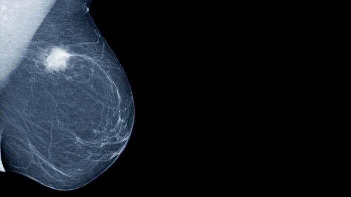 Encontrar biomarcadores de tumores resistentes de mama es clave para su tratamiento.